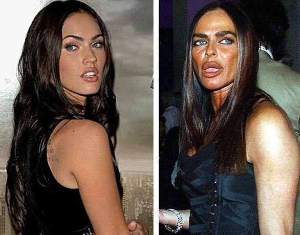 Micheala Romanini plastic surgery, Micheala Romanini collagen lip injections, botox injections, Micheala Romanini plastic surgery gone wrong, plastic surgery, plastic surgery disasters, plastic surgery gone wrong