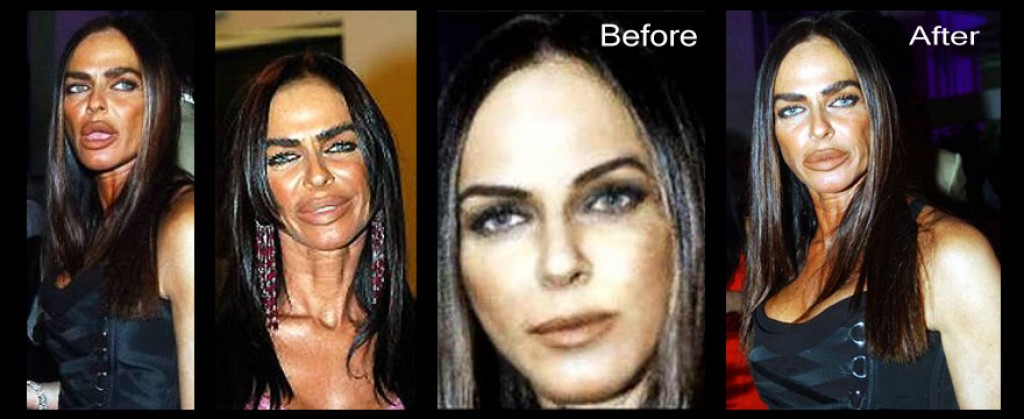 Micheala Romanini plastic surgery before after photos, Micheala Romanini plastic surgery disasters, Micheala Romanini plastic surgery story, Micheala Romanini wikipedia, Micheala Romanini bio