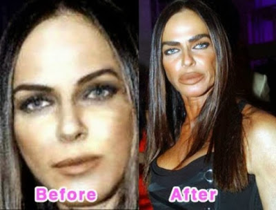 Micheala Romanini plastic surgery story, Micheala Romanini collagen lip injections, botox injections, Micheala Romanini plastic surgery gone wrong, plastic surgery, plastic surgery disaster, plastic surgery gone wrong