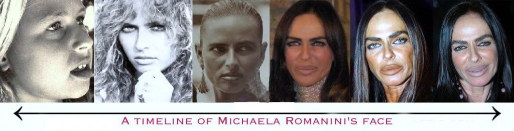 Micheala Romanini plastic surgery timeline, Micheala Romanini collagen lip injections, botox injections, Micheala Romanini plastic surgery gone wrong, plastic surgery, plastic surgery disasters, plastic surgery gone wrong