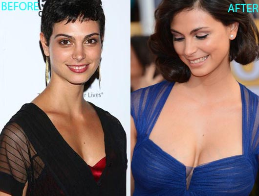 Morena Baccarin plastic surgery before after photos