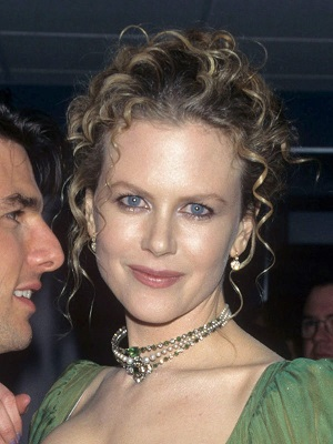 Nicole Kidman plastic surgery, Nicole Kidman botox treatment plastic surgery, Nicole Kidman botox plastic surgery before after photos, Nicole Kidman botox plastic surgery