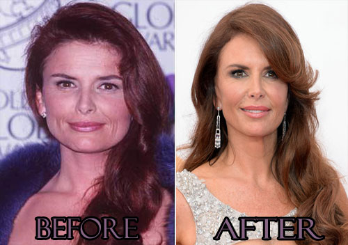 Roma Downey Plastic Surgery Before And After Photos, Roma Downey Plastic Surgery Botox, Roma Downey Plastic Surgery facelift, Roma Downey Plastic Surgery lip injection