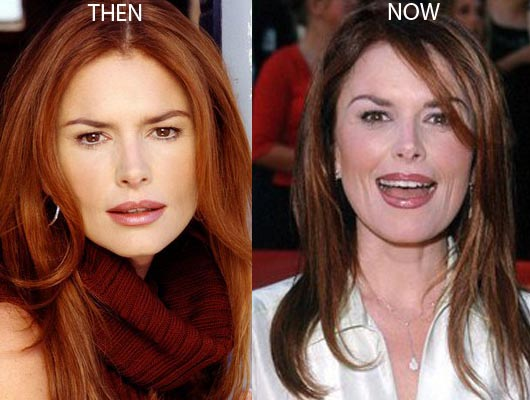 Roma Downey Plastic Surgery Before And After Photos, Roma Downey Plastic Surgery, Roma Downey Plastic Surgery Botox, Roma Downey Plastic Surgery facelift, Roma Downey Plastic Surgery lip injections
