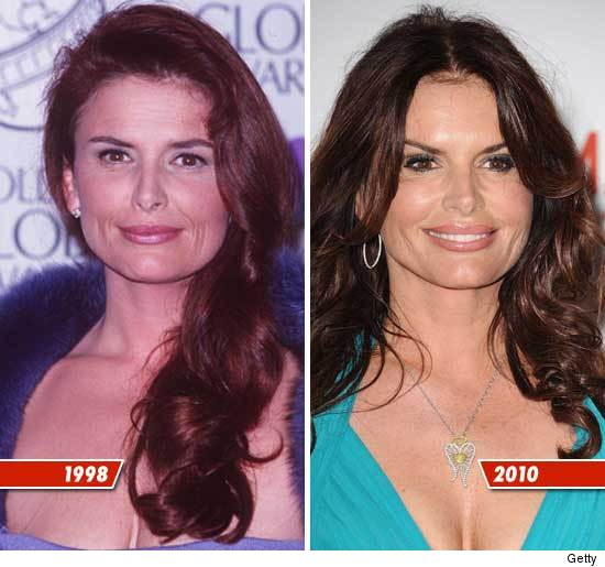 Roma Downey Plastic Surgery Botox Before And After Photos, Roma Downey Plastic Surgery Before And After Photos, Roma Downey Plastic Surgery
