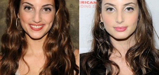 alexa ray joel plastic surgery, alexa ray joel plastic surgery before after photos, alexa ray joel plastic surgery nose job, breast augmentation2
