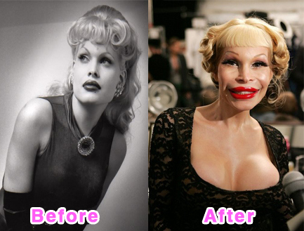 amanda lepore plastic surgery before after pictures, amanda lepore plastic surgery, amanda lepore plastic surgery disasters, amanda lepore plasti surgery gone wrong, amanda lepore plastic surgery story