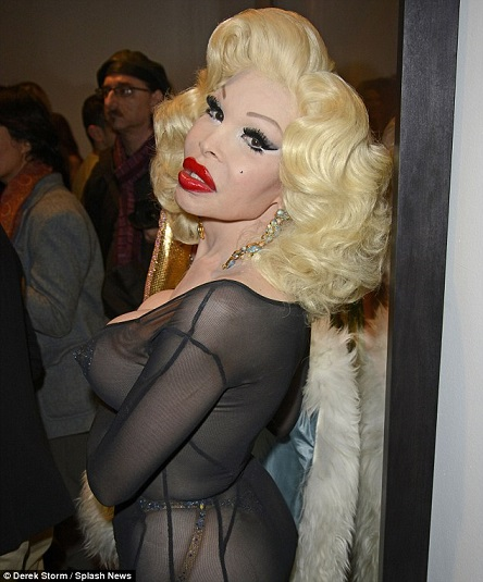amanda lepore plastic surgery before after pictures, amanda lepore plastic surgery, amanda lepore plastic surgery disasters, amanda lepore plasti surgery gone wrong, amanda lepore plastic surgery story2