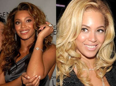 beyonce skin lightning, beyonce knowles skin lightning non surgical procedure