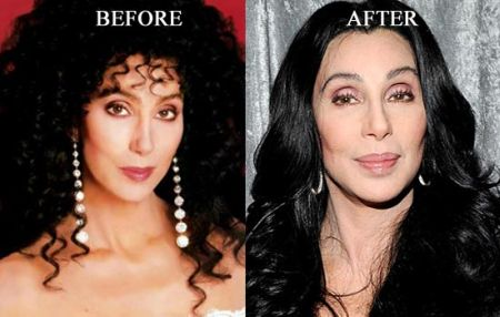 cher plastic surgery botox injections, cher plastic surgery before after photos, cher plastic surgery facelift, cher plastic surgery botox, cher plastic surgery rhinoplasty, cher plastic surgery nose job