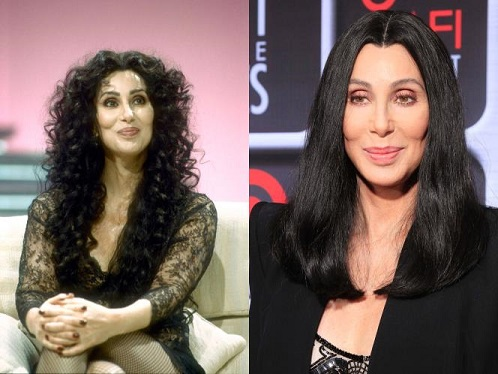 cher plastic surgery, cher plastic surgery before after photos, cher plastic surgery facelift, cher plastic surgery botox, cher plastic surgery rhinoplasty, cher plastic surgery nose job