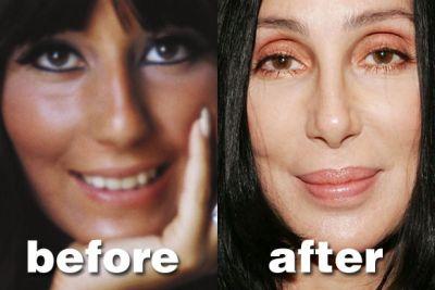cher plastic surgery, cher plastic surgery before after photos, cher plastic surgery facelift, cher plastic surgery botox, cher plastic surgery rhinoplasty, cher plastic surgery nose job1