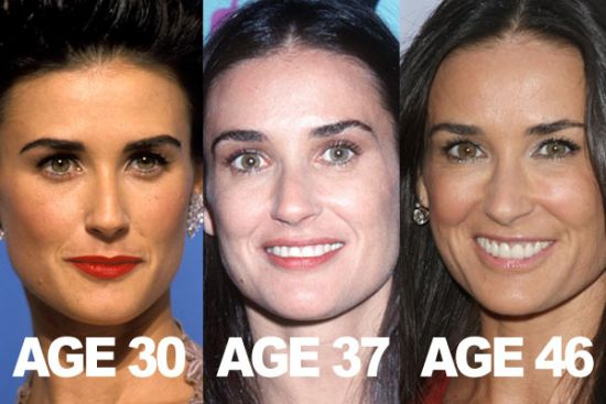 demi moore plastic surgery, demi moore plastic surgery before after photos, demi moore plastic surgery breast implants, demi moore plastic surgery botox