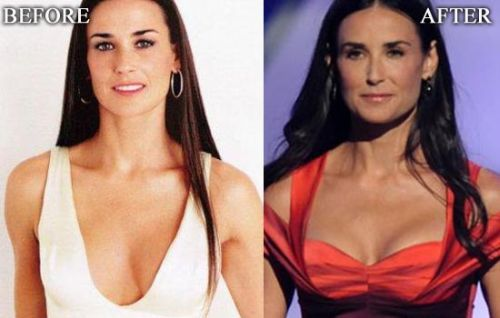 demi moore plastic surgery, demi moore plastic surgery breast implants, demi moore plastic surgery before after photos, demi moore plastic surgery botox