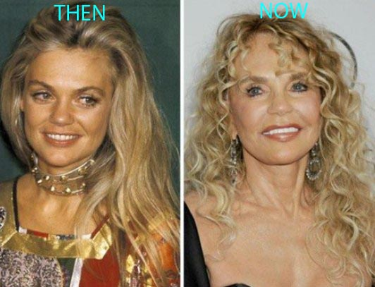 dyan cannon plastic surgery, dyan cannon plastic surgery before after photos, dyan cannon plastic surgery facelift, dyan cannon plastic surgery liposuction