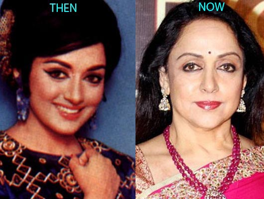 Hema Malini Plastic Surgery Before And After Photos