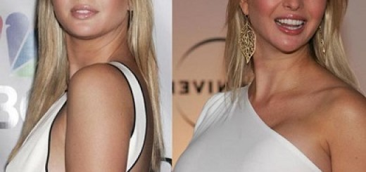 ivanka trump breast implants before and after photos
