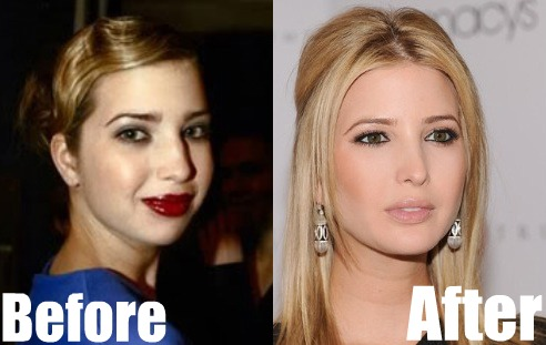ivanka trump nose job before after photos