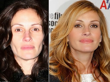 julia roberts plastic surgery before after photos, julia roberts plastic surgery before and after photos, julia roberts plastic surgery botox, julia roberts plastic surgery nose job