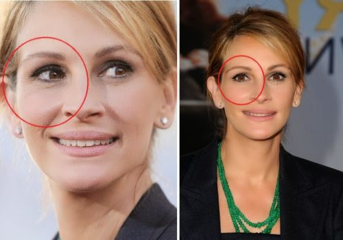 julia roberts plastic surgery eye lid, julia roberts plastic surgery before and after photos, julia roberts plastic surgery botox, julia roberts plastic surgery nose job