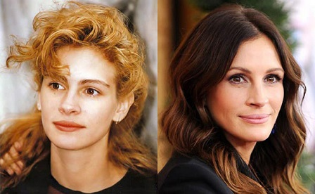 julia roberts plastic surgery, julia roberts plastic surgery before and after photos, julia roberts plastic surgery botox, julia roberts plastic surgery nose job