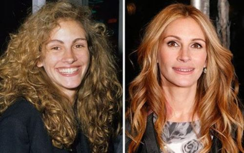 julia roberts plastic surgery, julia roberts plastic surgery before and after photos, julia roberts plastic surgery nose job, julia roberts plastic surgery botox, julia roberts plastic surgery facelift