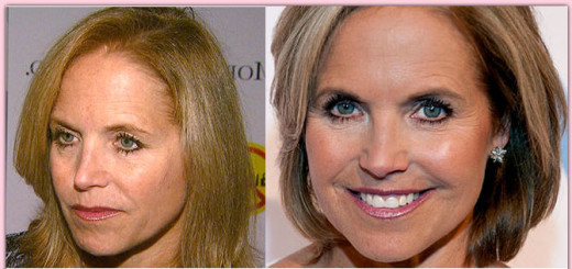 katie couric plastic surgery before after photos