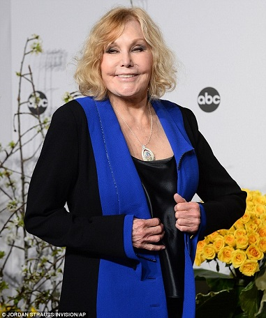kim novak plastic surgery, kim novak plastic surgery before after photos, kim novak plastic surgery facelift, kim novak plastic surgery chin implants