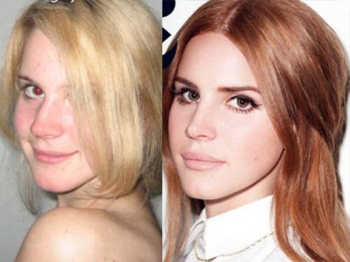 lana del rey plastic surgery before after photos, lana del rey plastic surgery, lana del rey plastic surgery lip surgery1