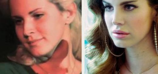 lana del rey plastic surgery before after photos, lana del rey plastic surgery, lana del rey plastic surgery lip surgery2