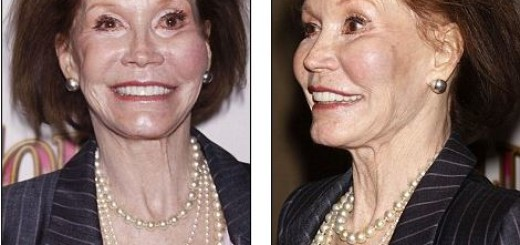 mary tyler moore plastic surgery, mary tyler moore plastic surgery before after photos, mary tyler moore plastic surgery botox, mary tyler moore plastic surgery facelift