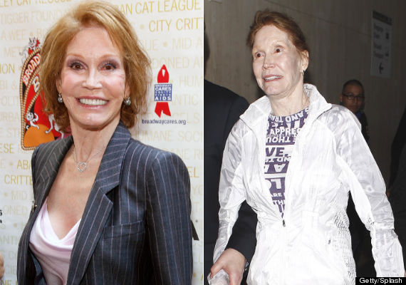 mary tyler moore plastic surgery, mary tyler moore plastic surgery before after photos, mary tyler moore plastic surgery botox, mary tyler moore plastic surgery facelift1
