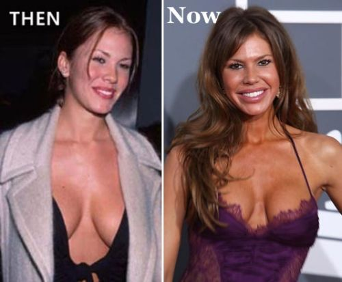 nikki cox before photos, nikki cox plastic surgery before after photos, nikki cox plastic surgery, nikki cox plastic surgery breast implants, nikki cox plastic surgery botox, nikki cox plastic surgery lip injections