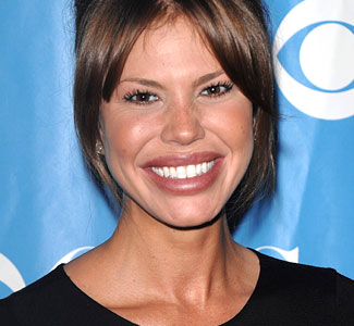 nikki cox lip injection, nikki cox plastic surgery before after photos, nikki cox plastic surgery, nikki cox plastic surgery breast implants, nikki cox plastic surgery botox, nikki cox plastic surgery lip injection