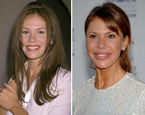 nikki cox lip injection, nikki cox plastic surgery before after photos, nikki cox plastic surgery, nikki cox plastic surgery breast implants, nikki cox plastic surgery botox, nikki cox plastic surgery lip injections