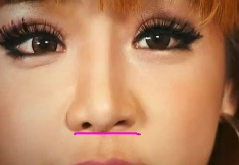 park bom plastic surgery, park bom plastic surgery gone wrong, park bom plastic surgery before and after photos, park bom plastic surgery nose job, park bom plastic surgery eyelid surgery3