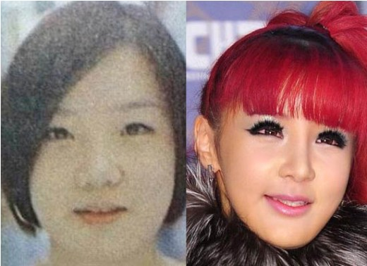 park bom plastic surgery, park bom plastic surgery gone wrong, park bom plastic surgery before and after photos, park bom plastic surgery nose job, park bom plastic surgery eyelid surgery7