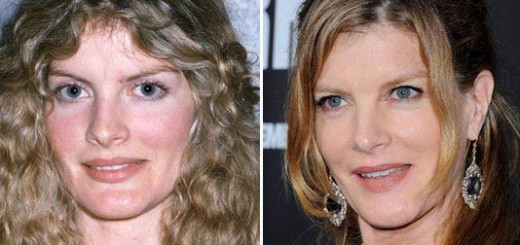 rene russo plastic surgery, rene russo plastic surgery before and after photos, rene russo plastic surgery botox, rene russo plastic surgery chin implants, rene russo cosmetic surgery