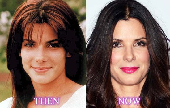 sandra bullock plastic surgery before after photos, sandra bullock plastic surgery, sandra bullock plastic surgery nose job, sandra bullock forehead lift plastic surgery, sandra bullock botox plastic surgery