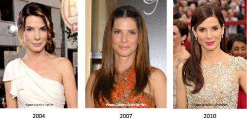 sandra bullock plastic surgery before after photos, sandra bullock plastic surgery, sandra bullock plastic surgery nose job, sandra bullock forehead lift plastic surgery, sandra bullock botox plastic surgery1