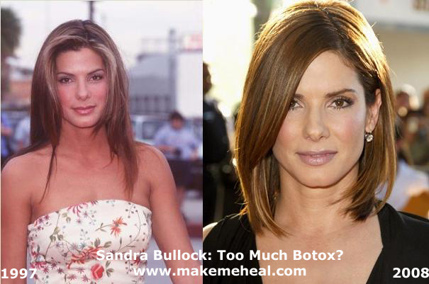 sandra bullock plastic surgery before after photos, sandra bullock plastic surgery, sandra bullock plastic surgery nose job, sandra bullock forehead lift plastic surgery, sandra bullock botox plastic surgery2
