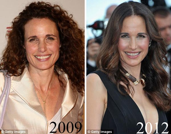 Andie MacDowell plastic surgery, Andie MacDowell plastic surgery before after photos, Andie MacDowell plastic surgery botox, Andie MacDowell plastic surgery fat injections