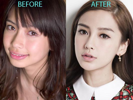 Angelababy plastic surgery, Angelababy plastic surgery before after photos, Angelababy plastic surgery chin surgery, Angelababy plastic surgery nose job