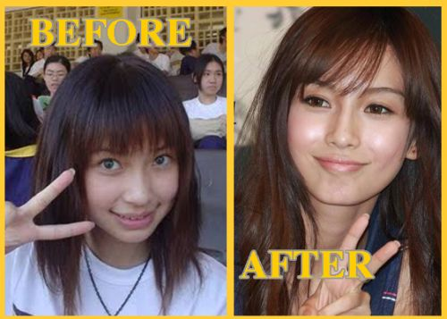 Angelababy plastic surgery, Angelababy plastic surgery before after photos, Angelababy plastic surgery chin surgery, Angelababy plastic surgery nose job2