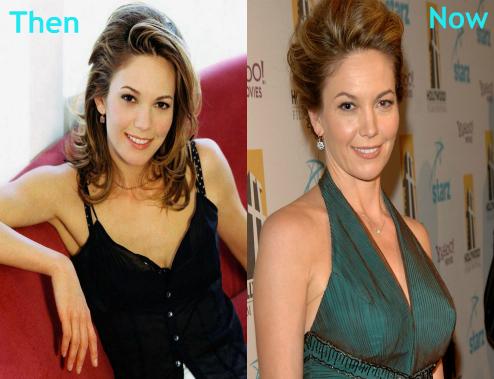 Diane Lane plastic surgery, Diane Lane plastic surgery breast augmentation, Diane Lane plastic surgery nose job1