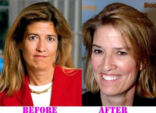 Greta Van Susteren plastic surgery, Greta Van Susteren plastic surgery eye lift, Greta Van Susteren plastic surgery botox, Greta Van Susteren plastic surgery before after photos