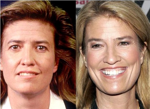 Greta Van Susteren plastic surgery, Greta Van Susteren plastic surgery eye lift, Greta Van Susteren plastic surgery botox, Greta Van Susteren plastic surgery before after photos1