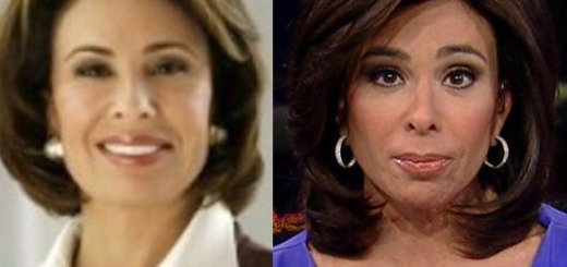 Jeanine Pirro Plastic Surgery, Jeanine Pirro Plastic Surgery before after photos, Jeanine Pirro Plastic Surgery botox, Jeanine Pirro Plastic Surgery face lift
