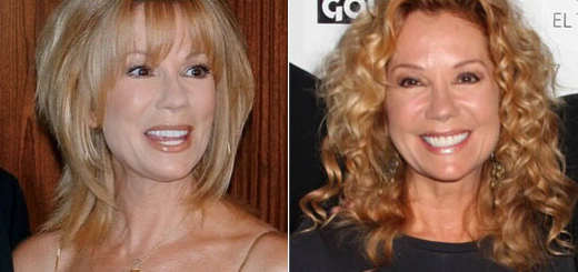 Kathie Lee Gifford plastic surgery, Kathie Lee Gifford plastic surgery botox, Kathie Lee Gifford plastic surgery cheek augmentationn, facelift