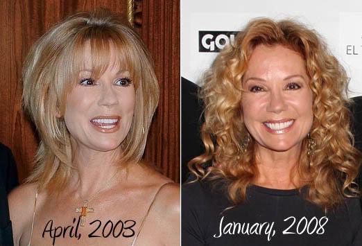 Kathie Lee Gifford plastic surgery, Kathie Lee Gifford plastic surgery botox, Kathie Lee Gifford plastic surgery cheek augmentationn, facelift